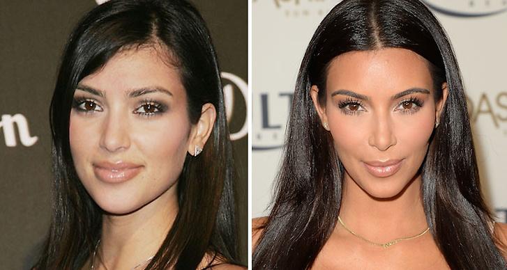9. Kim Kardashian: Om de ärt ålder eller operationer, det vet vi ej, men något drastiskt har förändrats med Kims utseende.