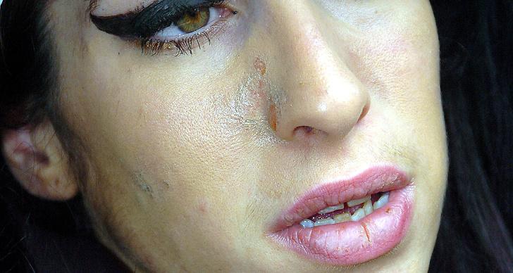Amy Winehouse, lägg ned pudret och tona ned glanset med absorberande blothing paper.